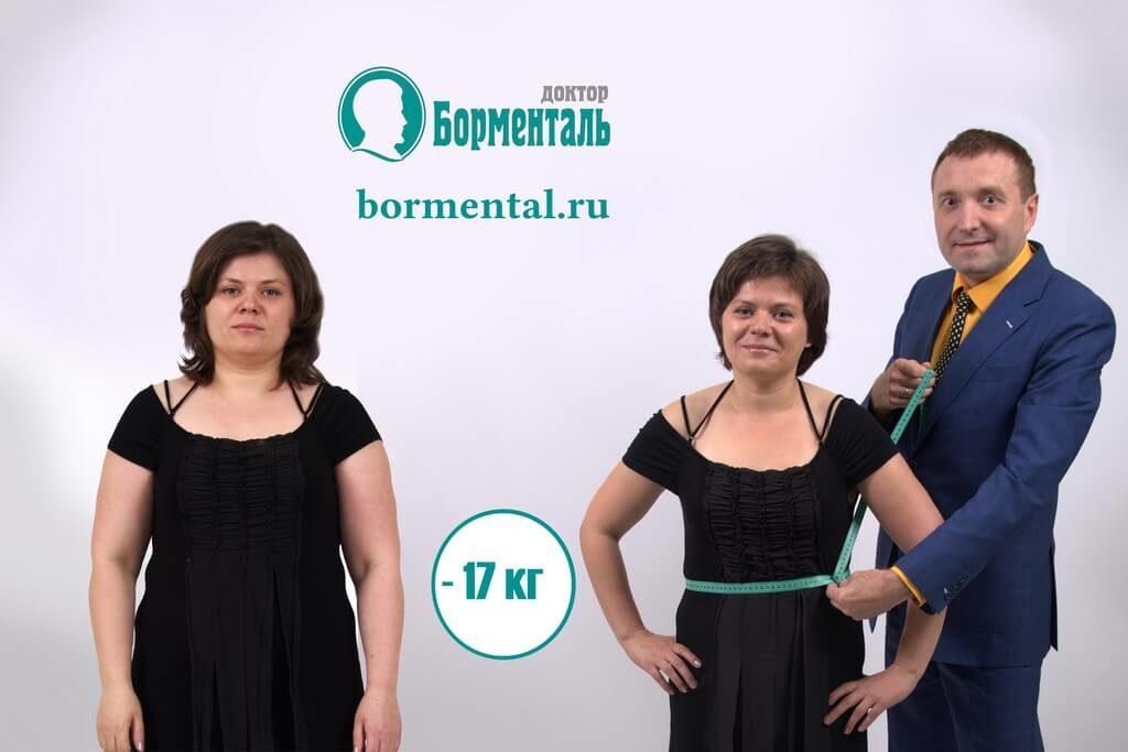 Отзывы о похудении по методики борменталь